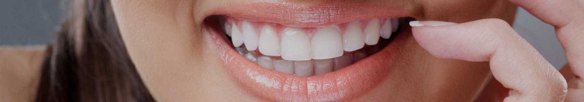 Teeth Straightening-Dingwall